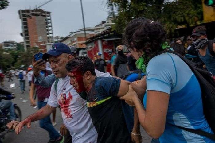Ministerio Público contabiliza 67 muertes tras 69 días de protestas en Venezuela
