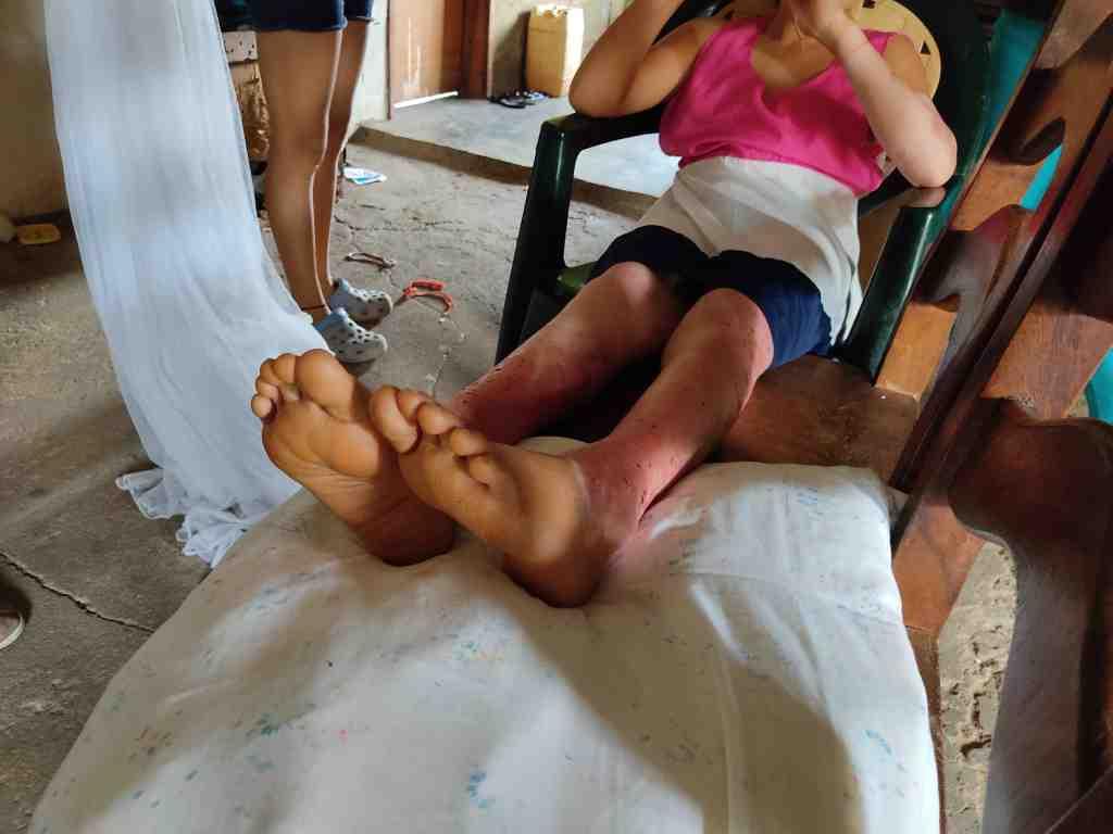 En Caño de Los Becerros es urgente la atención psicológica #ExplosiónMonagas